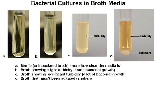 Broth Media Turbidity Jpg Images Frompo