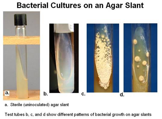 Types of Agar Plates
